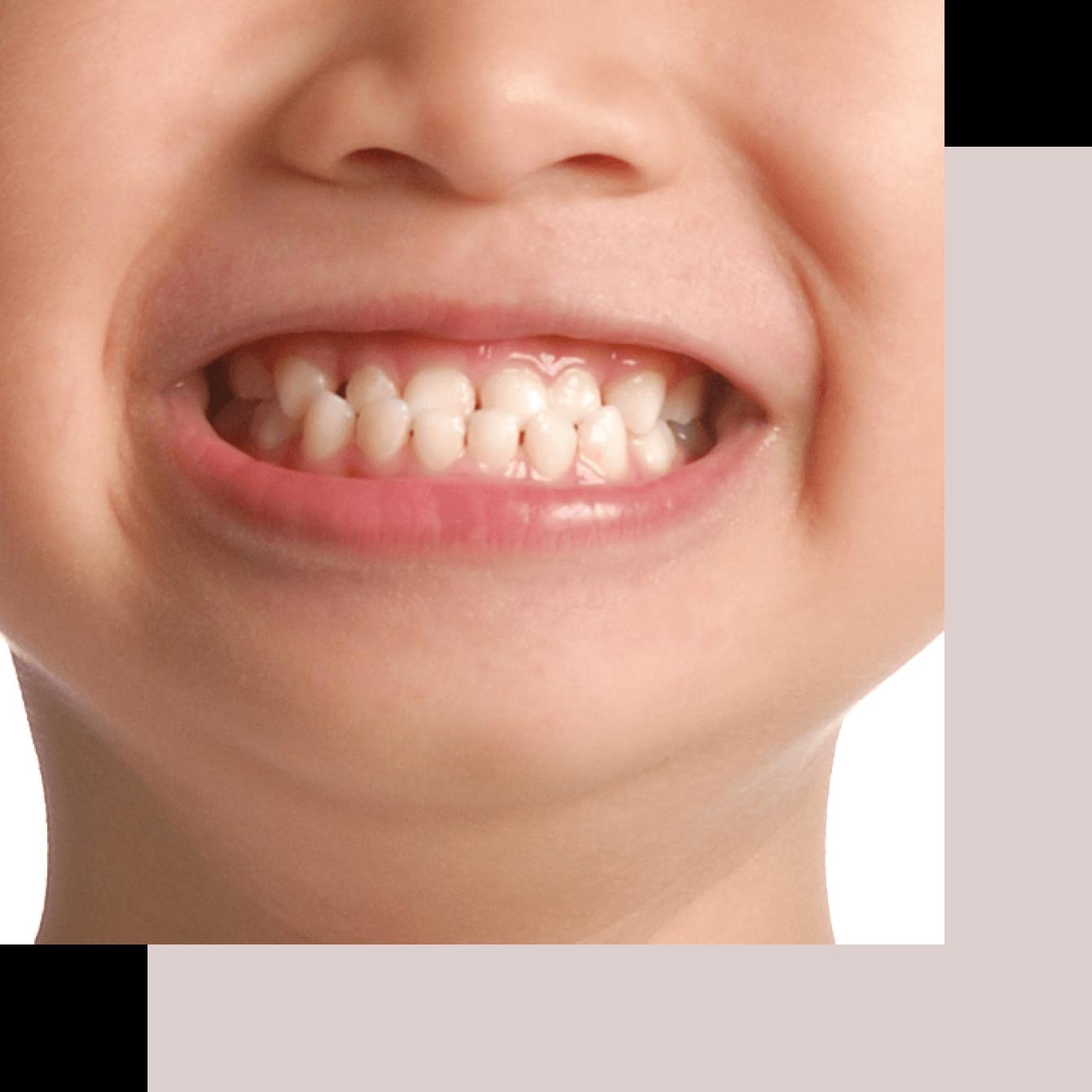 Calgary orthodontists